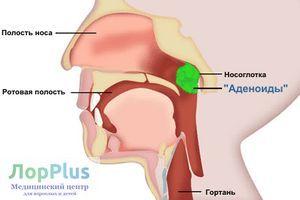 Операция аденотомия в Перми