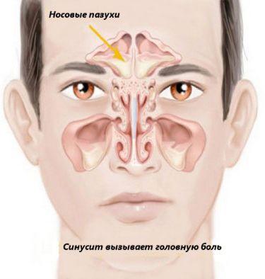симптомы и лечение хронического синусита