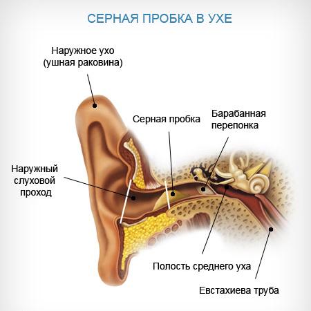 Удаление серной пробки из уха