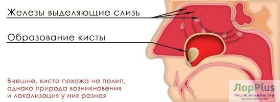 киста пазухи носа
