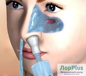 Промывание носа и околоносовых пазух методом перемещения жидкости